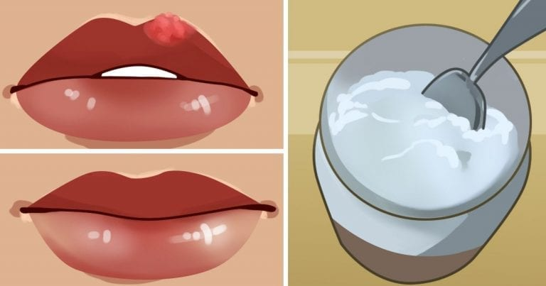 How to get rid of painful cold sore fast without going to pharmacy