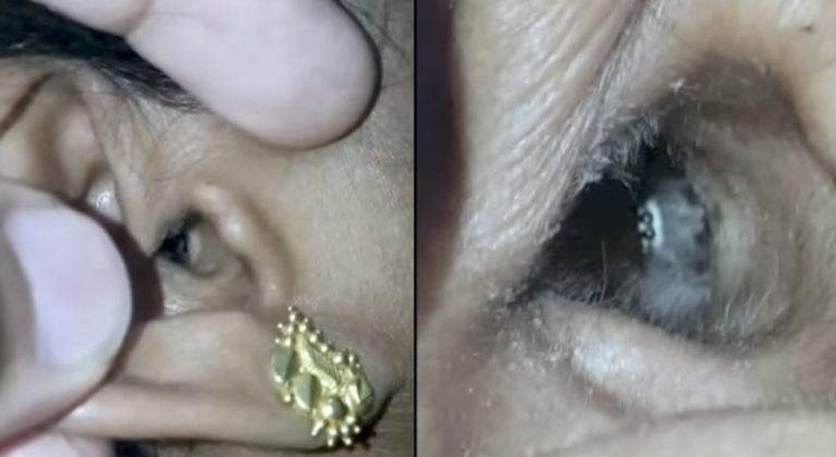 Complained Of A Headache. Then They Looked In Her Ear And Saw A Tiny Face.