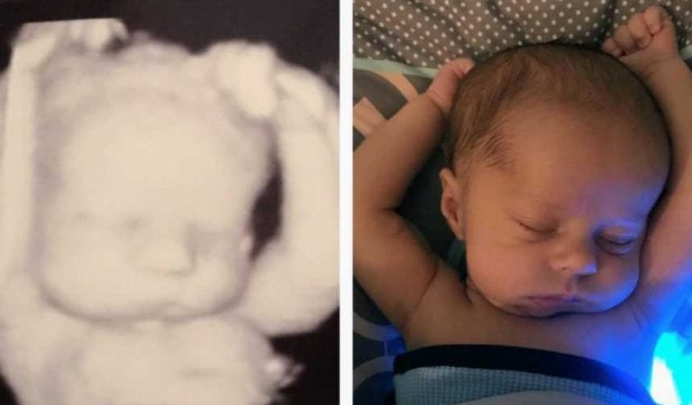 Weeks after birth, mom compares ultrasound photo and puts together something she missed