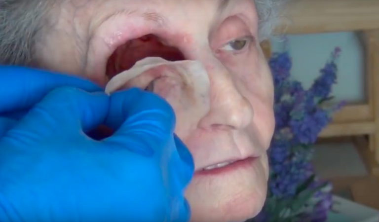 Wow!!Watch as They Remove Eye With Bare Hands