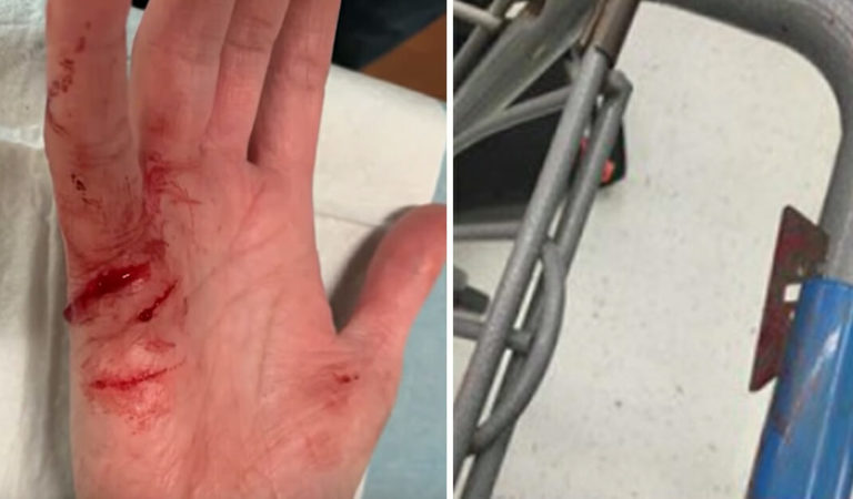 Mom loses consciousness after having hand sliced open by razor blade hidden in Walmart trolley